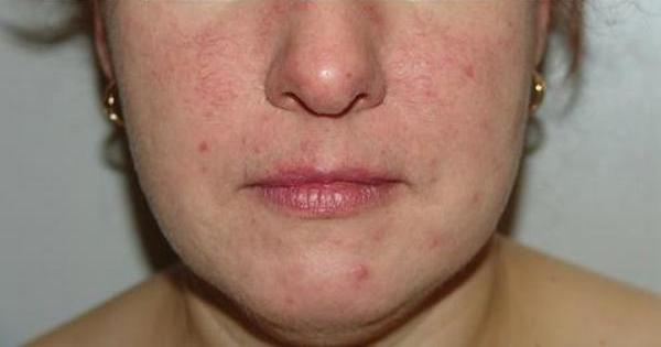 Псориаз на лице: фото начальная стадия, лечение (мази и лекарства)