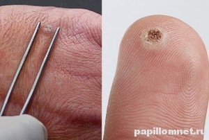 Папилломы на теле: лечение и причины появления с фото