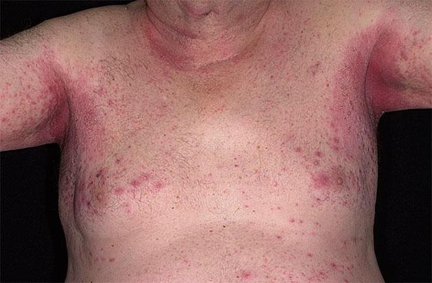 Потница у взрослых: фото, симптомы и лечение