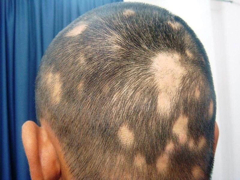 Очаговая алопеция у мужчин: лечение разными методами