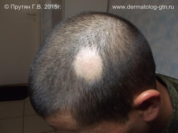 Очаговая алопеция (гнездная плешивость, alopecia areata): фото ...