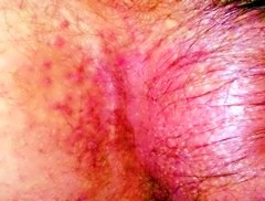 Болезнь Дюринга – герпетиформный дерматит