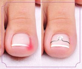 Ортониксия (лечение вросшего ногтя) в Краснодаре