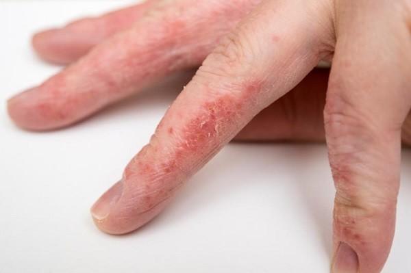 Экзема на пальцах рук: фото, как лечить?