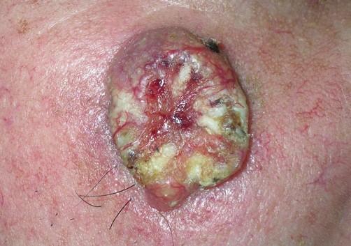Плоскоклеточный рак кожи. Стадии на фото и лечение.