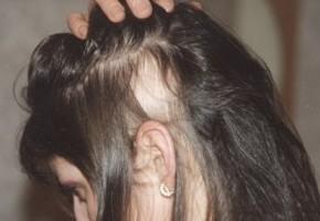 Причины перхоти и выпадения волос у детей и подростков: лечение