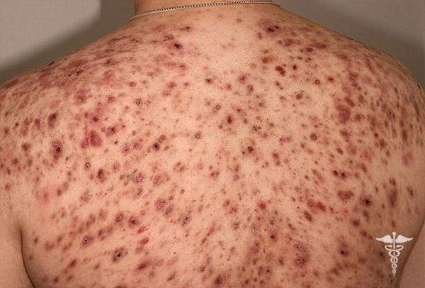 Прыщи на спине: основные причины появления и способы лечения