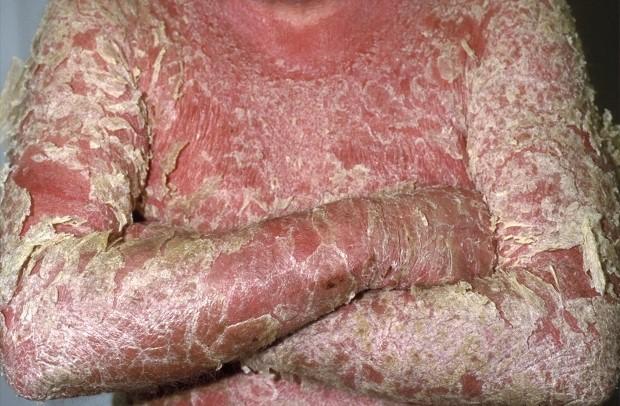 Виды псориаза: вульгарный, себорейный и другие. Фото здесь!