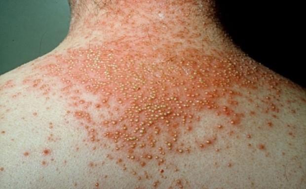 psoriasis-types-pustular-3
