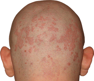 Псориаз волосистой части головы фото, псориаз головы