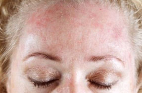 Псориаз на лице лечение