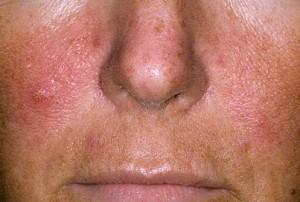 Псориаз на лице: симптомы, чем лечить и мазать, лечение в домашних ...
