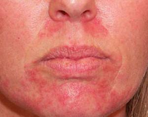 Псориаз на лице лечение | СпросиДерматолога