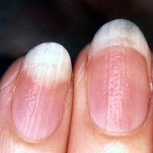Псориаз ногтей: лечени и симптомы, лечение в домашних условиях ...