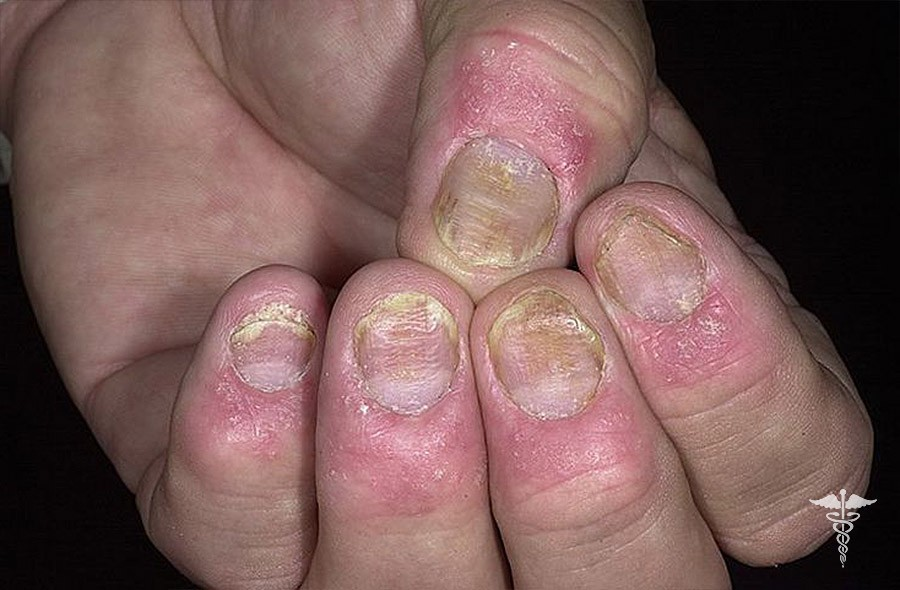 Псориаз ногтей: лечение, основные симптомы и профилактика