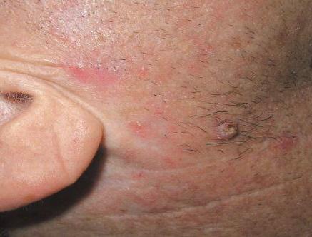 Рак кожи начальная стадия: симптомы, признаки, фото