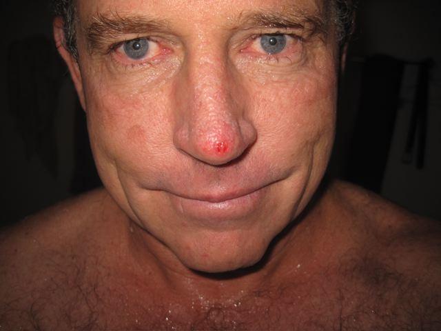 Рак кожи носа: плоскоклеточный рак носа