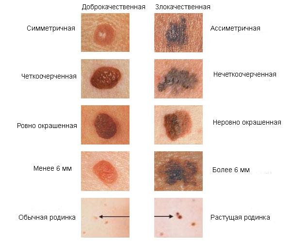 рак кожи - признаки