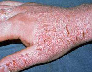 Дерматит на руках: лечение, народные средства | Азбука здоровья