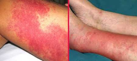 Проявления рожи ног, фото 2