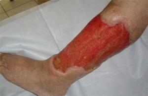 Рожа на ноге - симптомы, лечение, фото болезни рожа