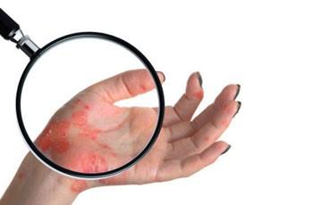 Рожистое воспаление кожи, причины, лечение, осложнения ...