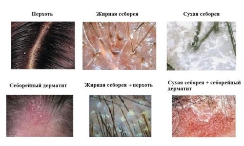 Причины и лечение перхоти на голове
