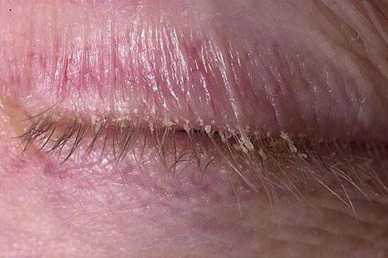 Проявление себорейного дерматита в области кожи век