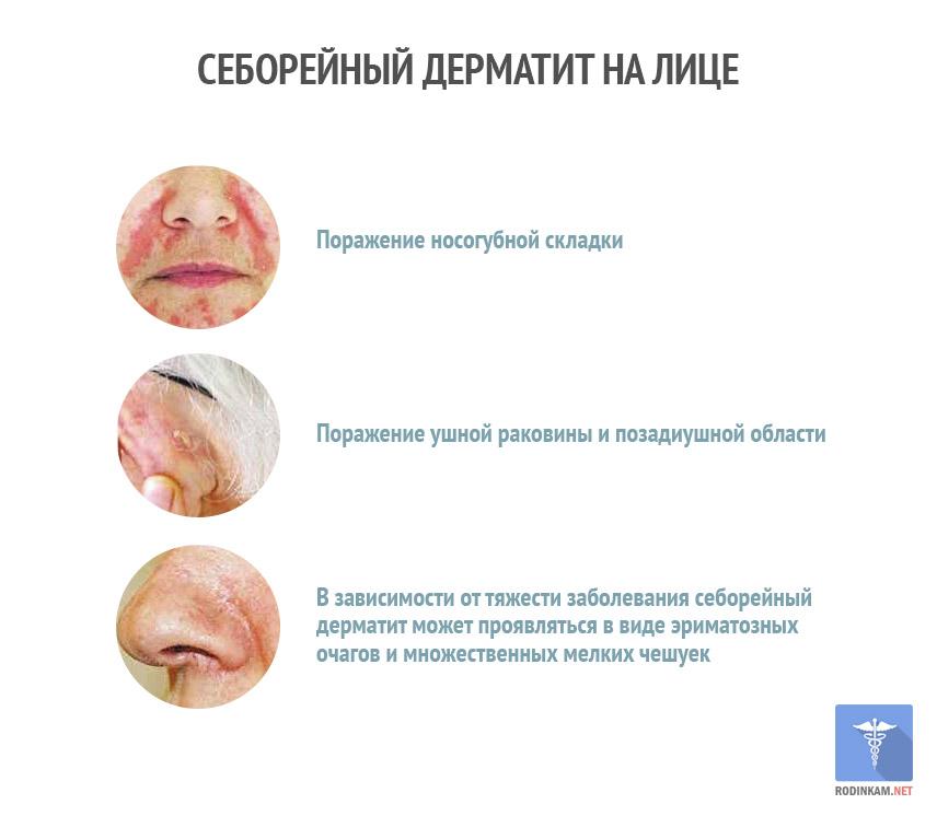 Себорейный дерматит лечение мазь — Lady Citytile