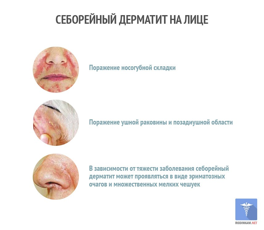Себорейный дерматит на лице: лечение, симптомы и фото