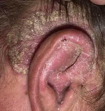 Себорейный дерматит - фото