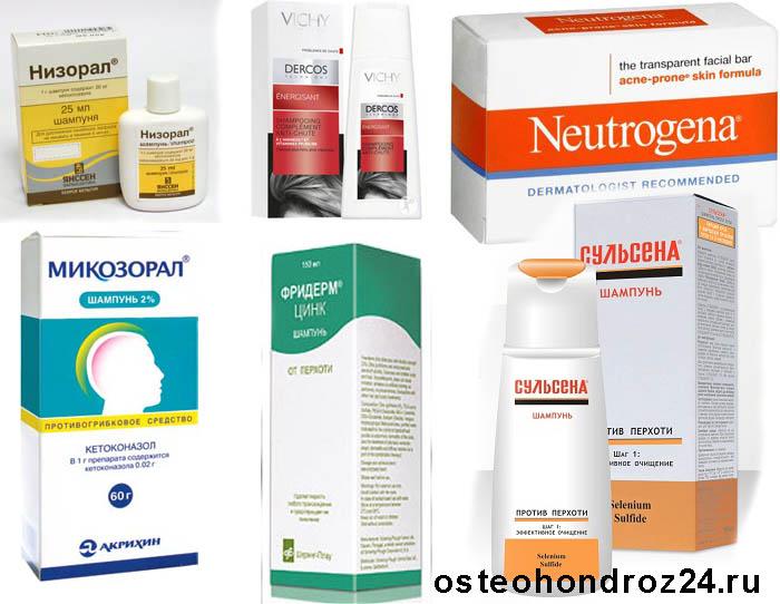 Эффективное лечение себорейного дерматита на голове