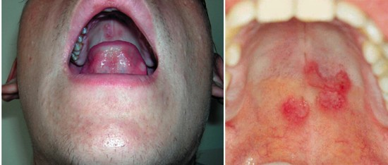 Сифилис во рту и горле: сифилитическая ангина, сифилис языка ...