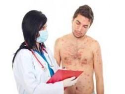 Сифилитическая сыпь: фото у мужчин как выглядит, отзывы