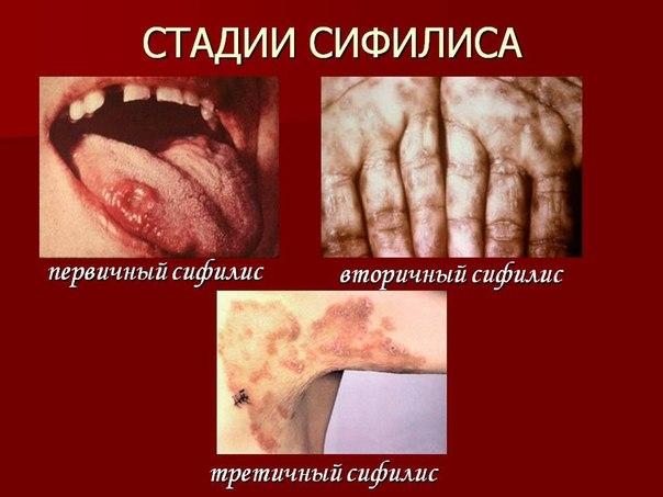 Сифилис: симптомы и лечение