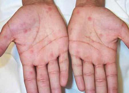 Сифилитическая сыпь фото у мужчин