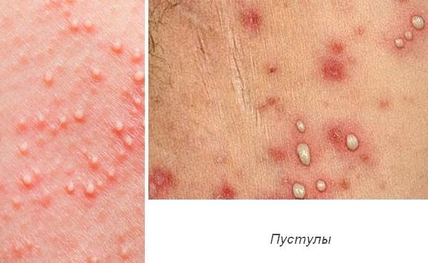 Сифилитическая сыпь как симптом при разных периодах заболевания ...