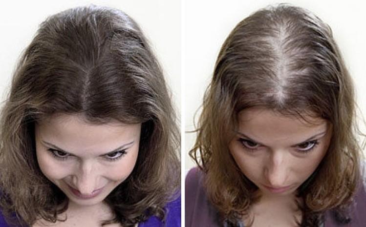Андрогенетическая алопеция у женщин: симптомы и лечение - Hehair.ru