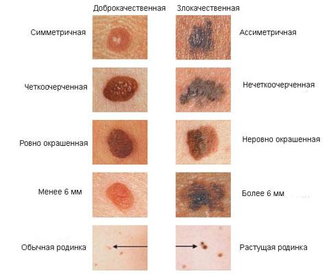 Симптомы (признаки) меланомы - подногтевой, узловой, у детей, фото