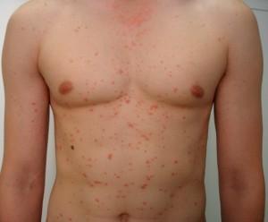 Симптомы, причины и лечение псориаза +фото | Лечение псориаза