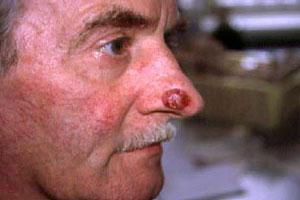 Рак кожи носа: симптомы и лечение, фото и начальная стадия