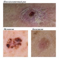 Лечение рака кожи: диагностика и методы лечения