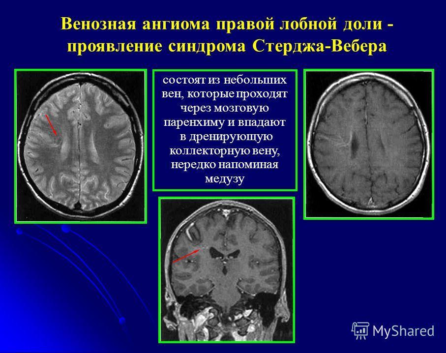 """Презентация на тему: """"Лучевая диагностика (КТ и МРТ) заболеваний ..."""