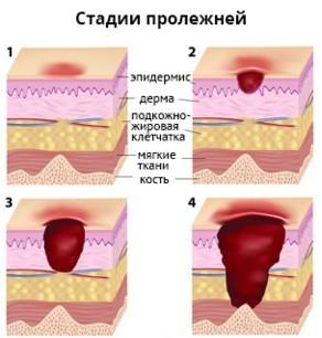 пролежни, опрелости : Дерматология : Газета Бабушка - Народная ...