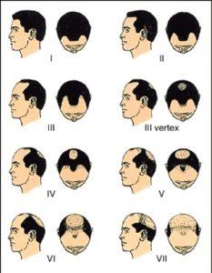 сколько живет волос на редеющей голове мужчины