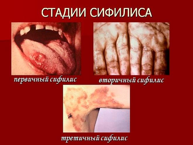 Стадии сифилиса - характерные отличия и характеристики