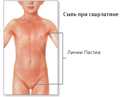 Сыпь при скарлатине. Фото у детей и взрослых   Скарлатина