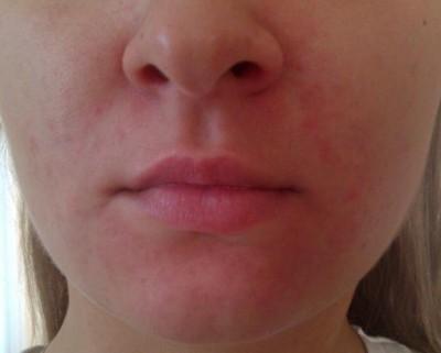 Сыпь на лице у взрослого: причины появления на лице и щеках