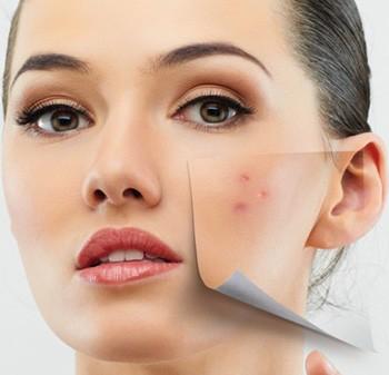 Некоторые причины появления сыпи могут быть незначительными, однако чаще всего она свидетельствует о серьезных заболеваниях