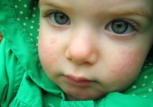 Температура при крапивнице у детей лечение Процедуры и медикаменты ...